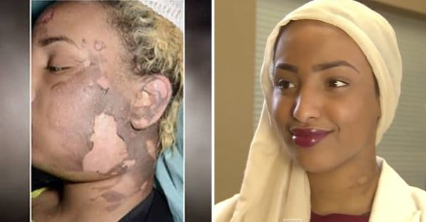 Bullying Victim Tattoos Her Scarred Face Back to Normal