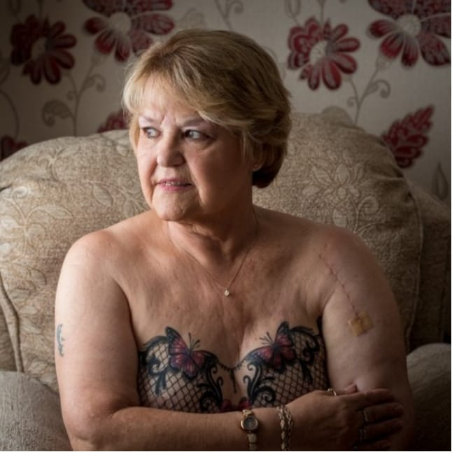 Awesome Great-Granny Got Gorgeous Lacy Mastectomy Tattoo