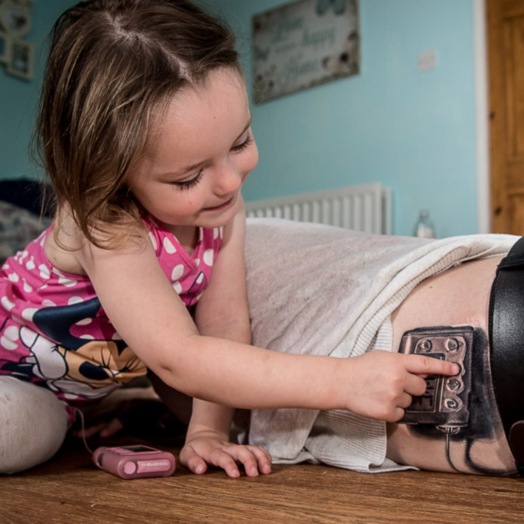 Loving Father Has Daughter's Insulin Pump Tattooed on His Side