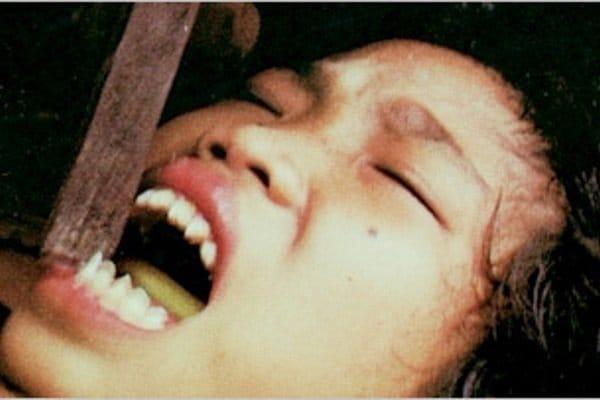 Teeth sharpening