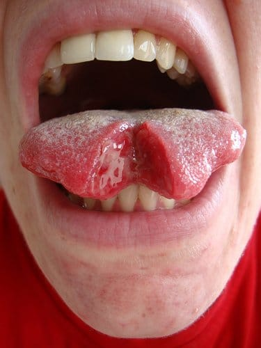 Extreme Body Modification: Tongue Splitting (Warning: Graphic content)