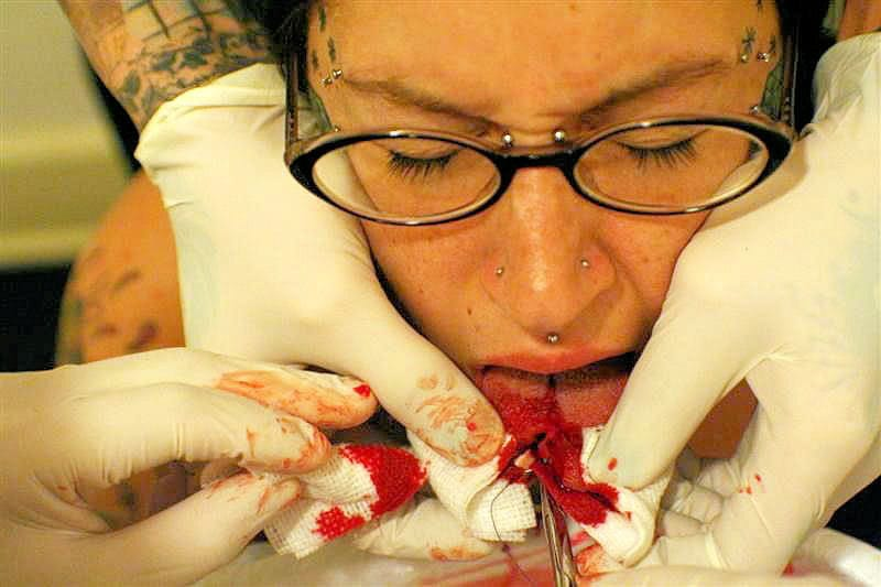 Extreme Body Modification Tongue Splitting Warning