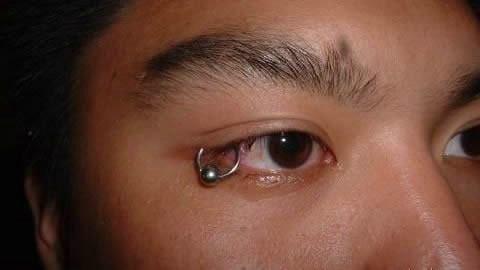 Eyelid Piercing Extreme Body Mo...