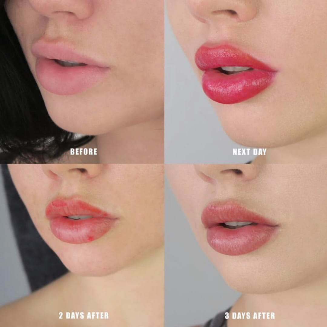 Lip Blush 101: Pucker Up That Pout | Tattoodo