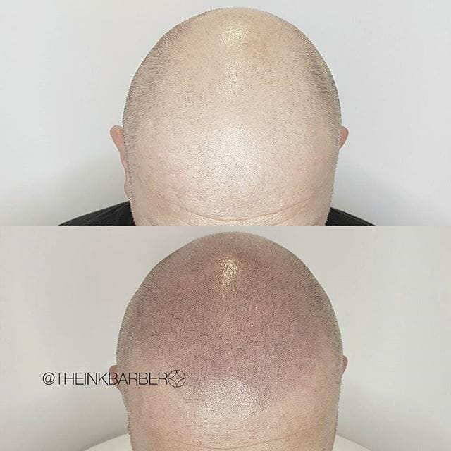 Scalp Micro-Pigmentation 101: The Other Hair Loss Solution