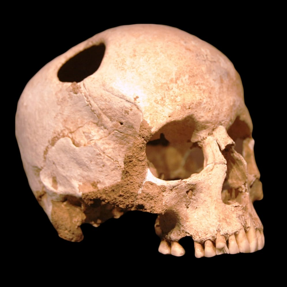 Drilling A Hole In Your Skull – The History Of Trepanation