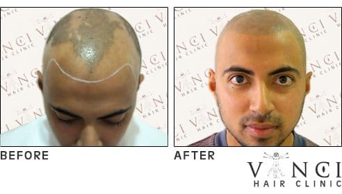 Before and after scalp tattooing