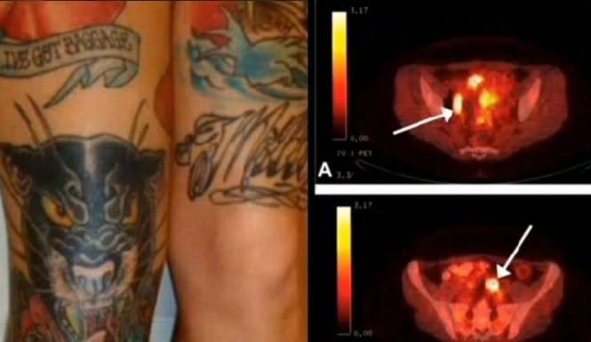 Tinta De Tatuagem Confundida Com Nódulos De Câncer
