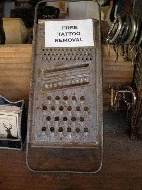 Free Tattoo Removal