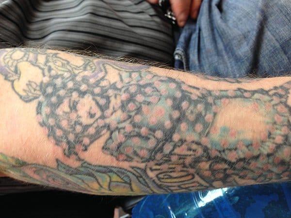 Tatt2Away tattoo removal