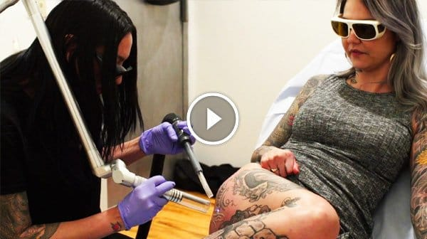Daddy Ain't Home No More! Watch Lani Get Laser Tattoo Removal