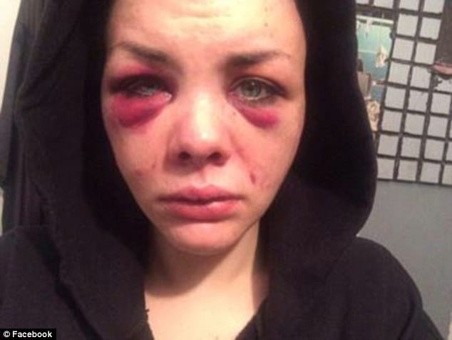 Alexander Rose Johnson after Bond attacked her!!