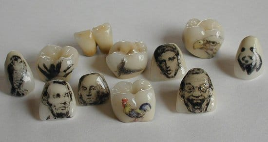 Different styles and sizes can be done, depending on the shape of the tooth