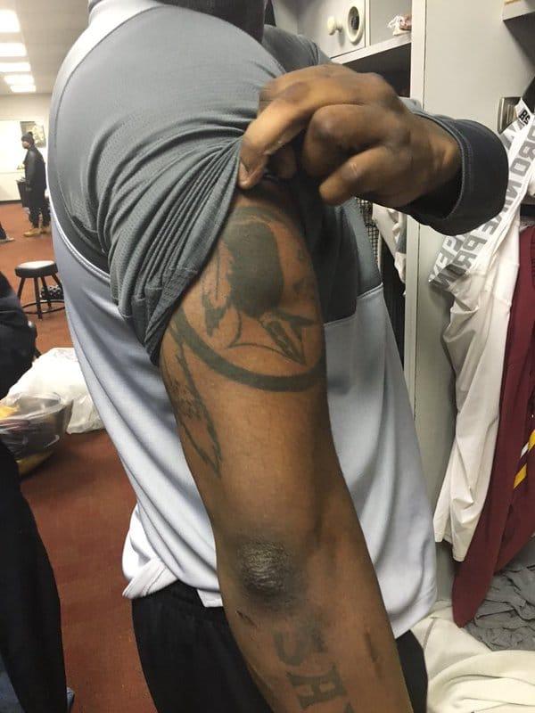 Galette's New Redskins Tattoo