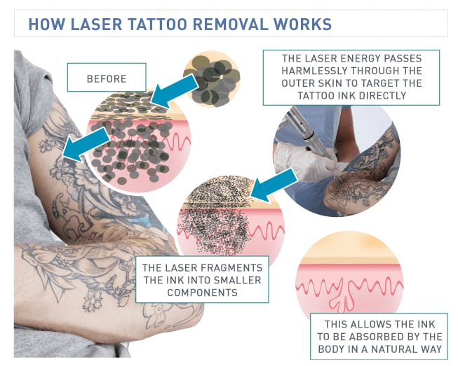 The Science Behind Laser Tattoo Removal: How It Works