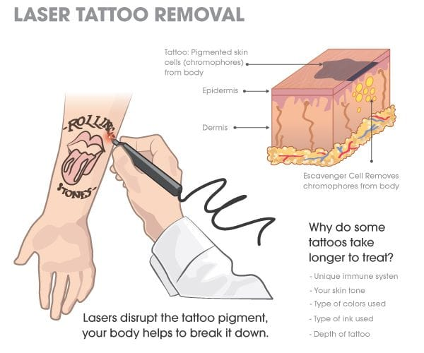 A simple guide to laser tattoo removal. Chart courtesy of Fallen Ink Laser Tattoo Removal.
