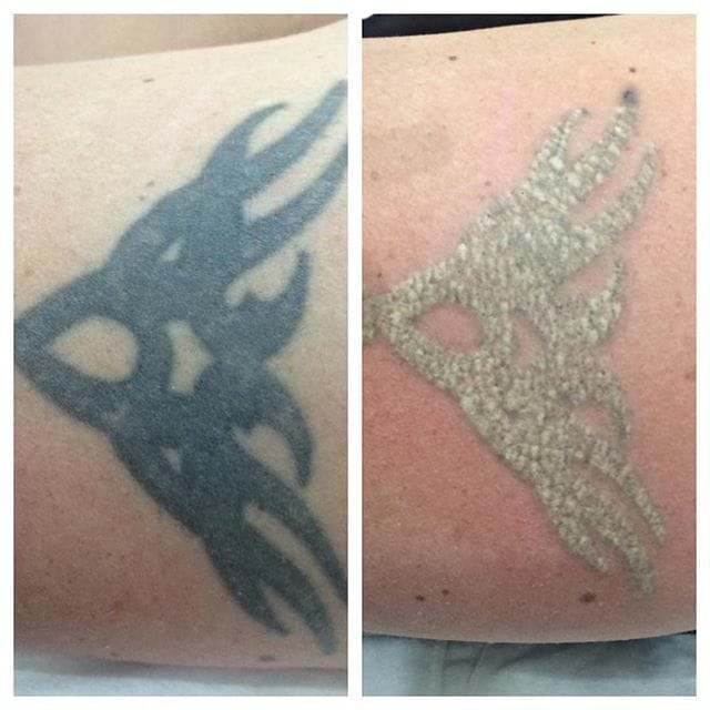 On the left a tattoo before it has been lasered. On the right immediately post laser treatment.