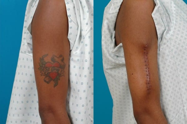 Surgically removed tattoo. Image courtesy of Kaplan Cosmetic Surgery