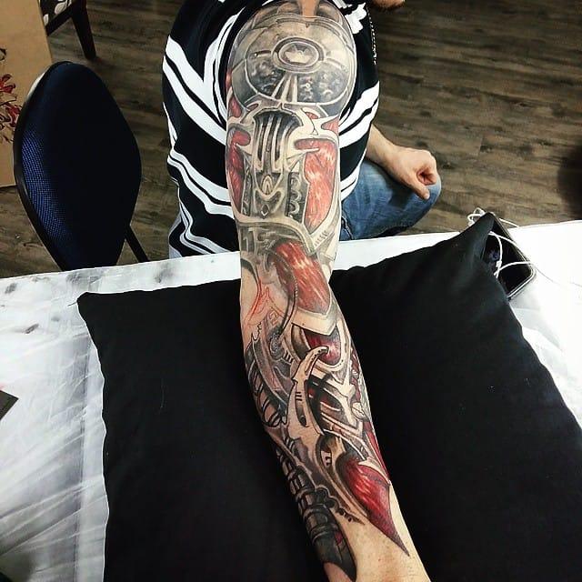 Incrível fechamento de braço já cicatrizado!