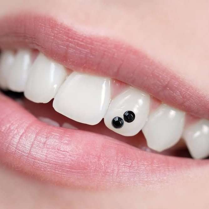 Did You Know? Dental Piercings Are Trending Again!