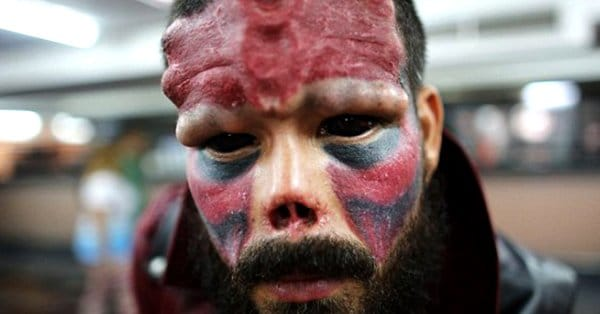 Fan Gets Nose CHOPPED OFF, Tattoos & Implants to Look Like Red Skull