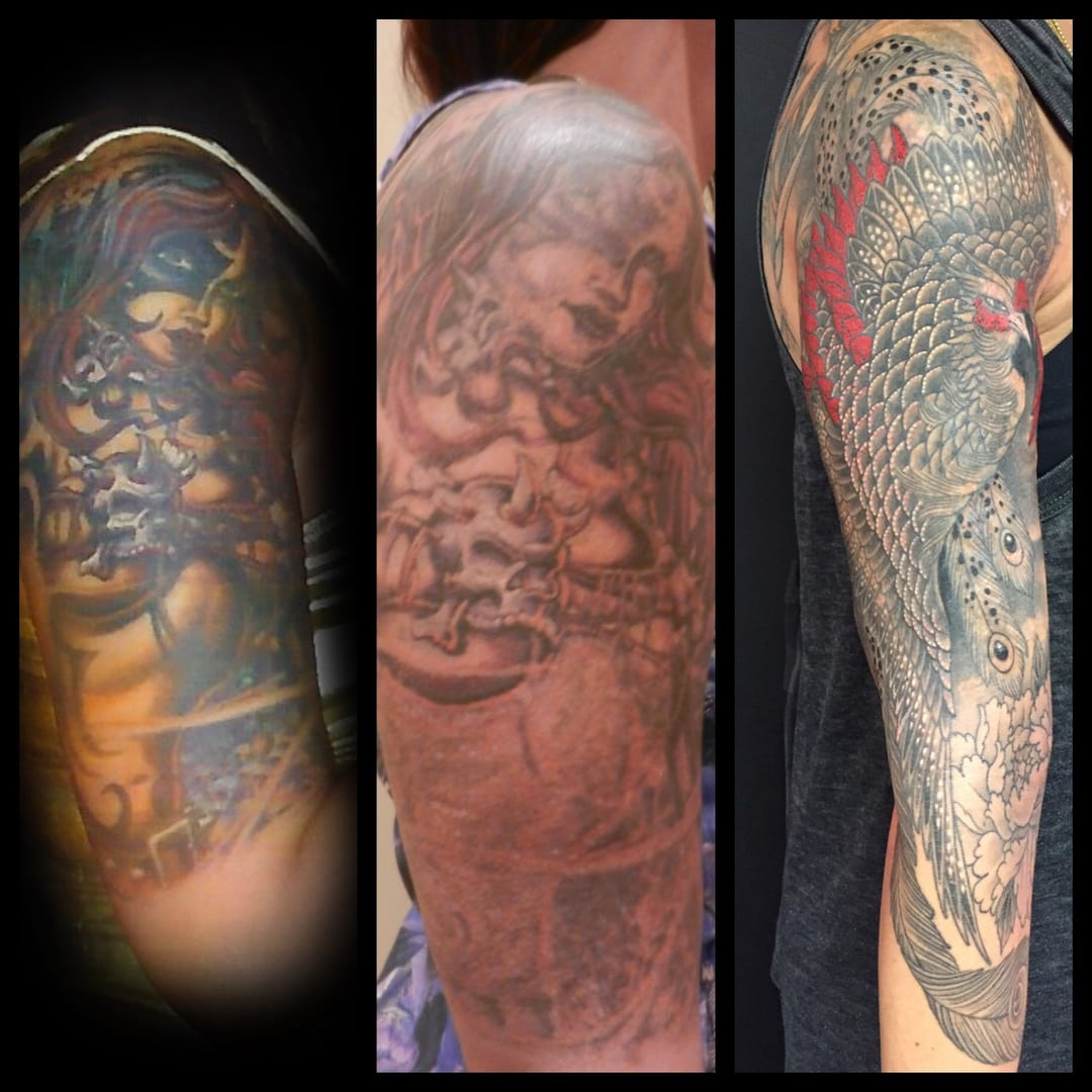 Tattoo removal and lightening is not just what I do. It's been a personal journey for me. This is my arm. 8 treatments with the Medlite C6. New tattoo by the talented Chris Garver from Invisible, NYC